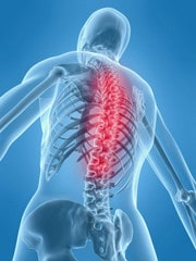 acupuncture effective for backache