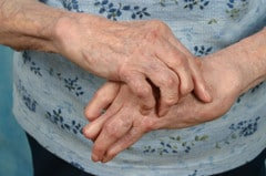 Painful joints due to Rheumatoid Arthritis can often be relieved with acupuncture